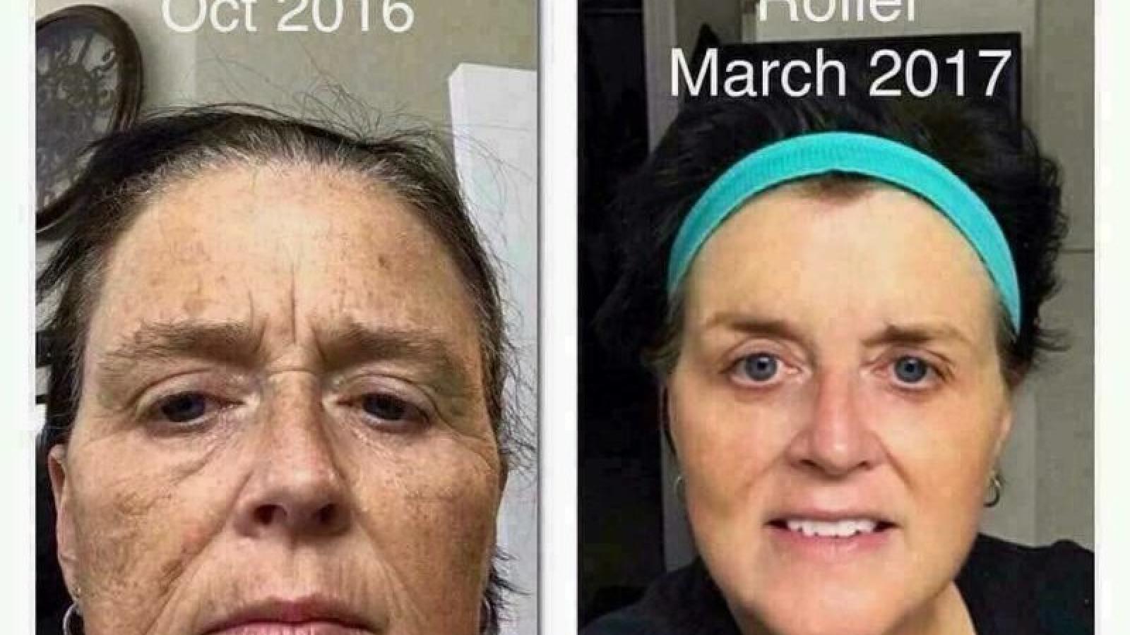 Beauty regimine to get rid of wrinkles
