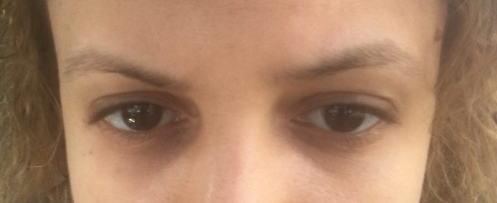 Eyebrows before Microblading