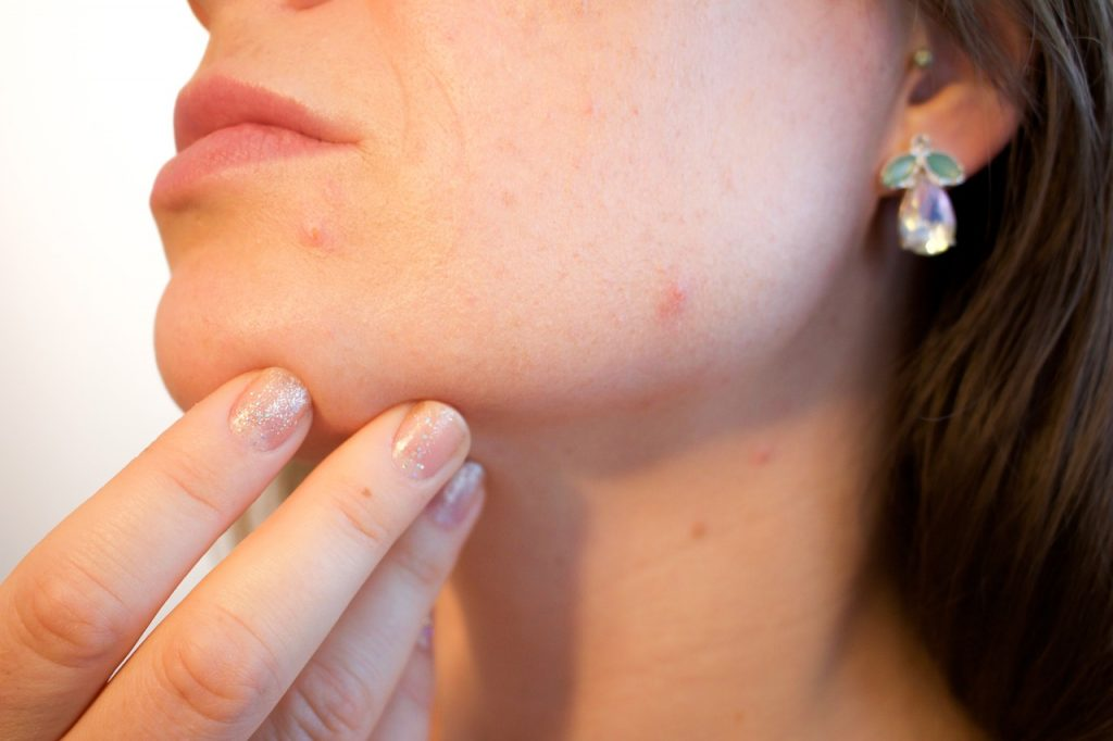 Foods that may be causing your Acne