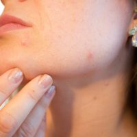 5 Foods that May be Causing your Acne